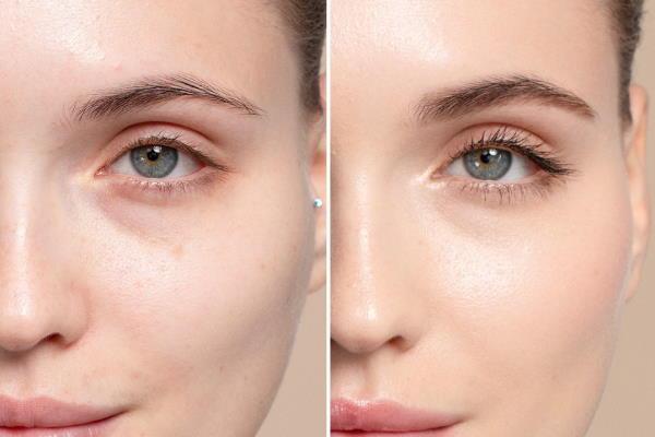 Najbolji korektori za lice – kako ih koristiti i postići savršen izgled
